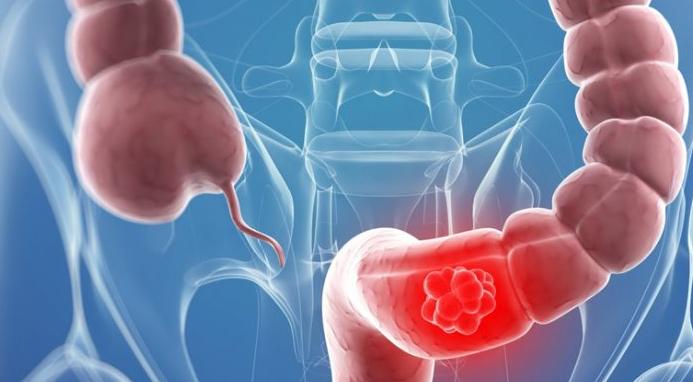 Как да разпознаем ранните симптоми при рак на червата