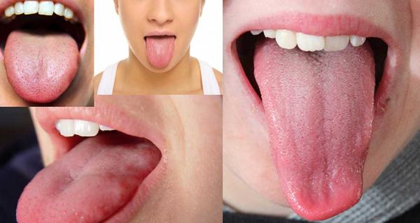 Цветът на езика разкрива от какво заболяване страдате, проверявайте го ежедневно