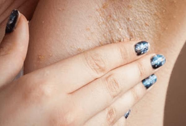 Какво означава потъмняването на кожата по лактите, слабините и мишниците