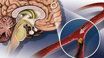 Какво увеличава многократно рискът от инсулт
