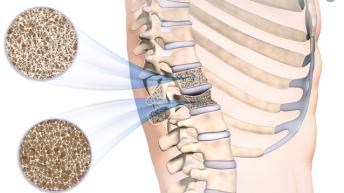 Симптоми на остеопороза на гръбначния стълб