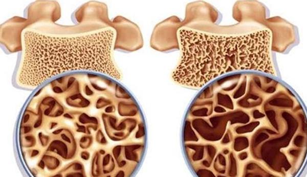 5 симптома на остеопороза, които хората пренебрегват