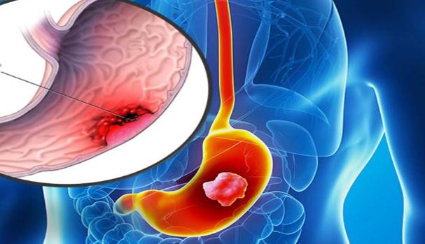 Няколко ранни признака за рак на стомаха, които ще ви помогнат да хванете заболяването навреме